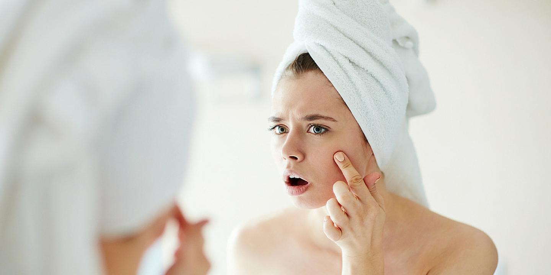cuidados com a acne
