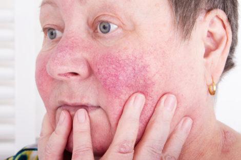 rosacea rubor facial